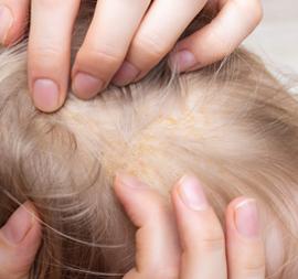 Kulit Kepala Si Kecil Berkerak? Apa Penyebab dan Bagaimana Mengatasinya?